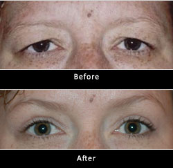 Botox Brow Lift Before And After Oculoplastic Surgical